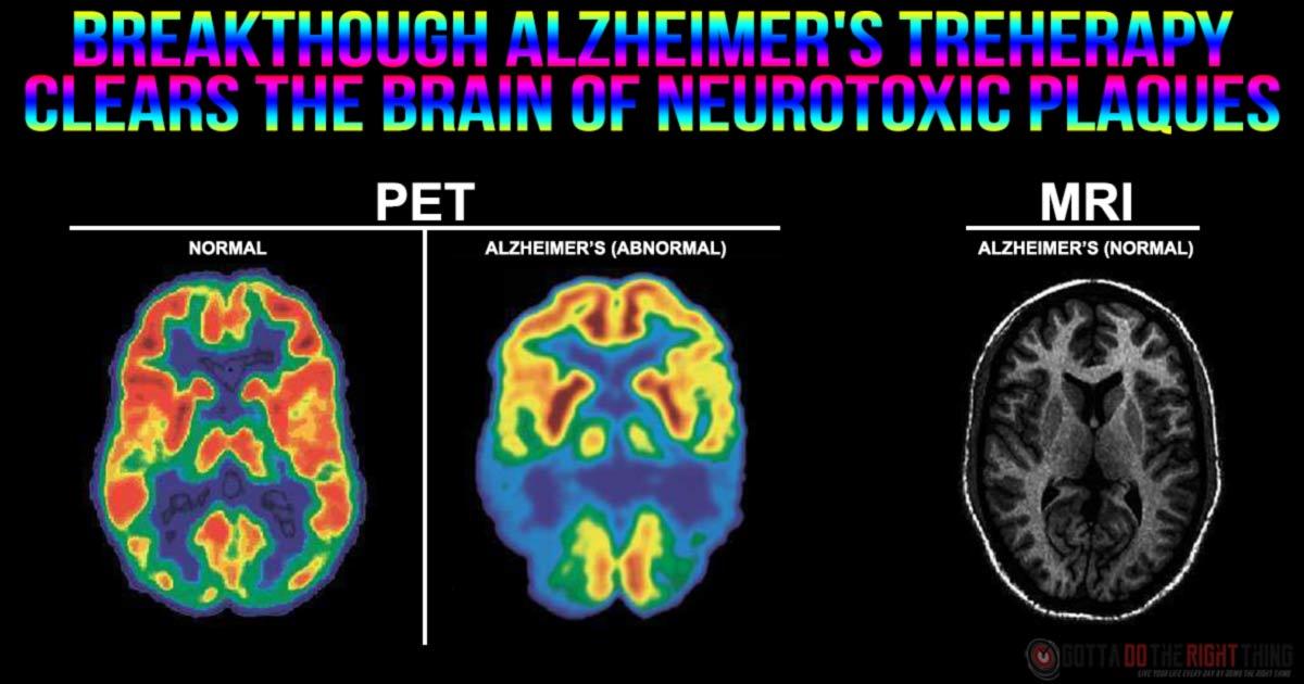 Breakthrough: Alzheimer's Treatment Fully Restores Memory Function