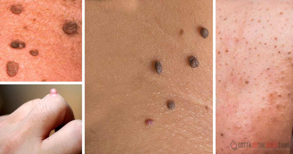 Use Natural Remedies To Get Rid Of Skin Tags, Moles, Dark Spots, Warts & Clogged Pores