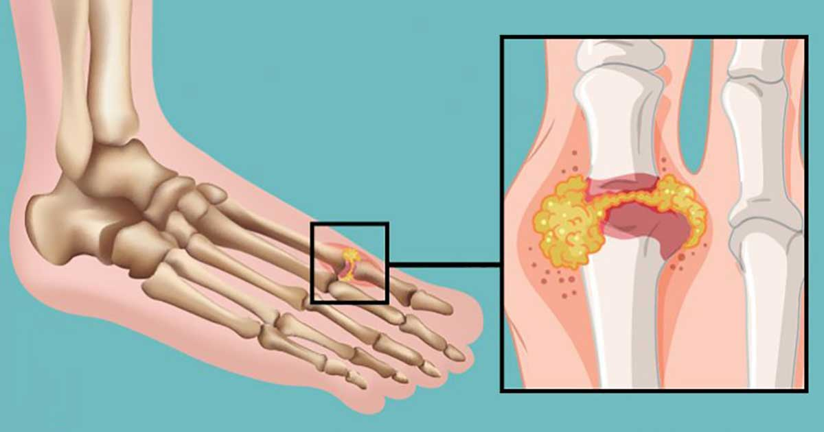 This Vitamin Can Reduce Gout Pain! Here's Where to Find It