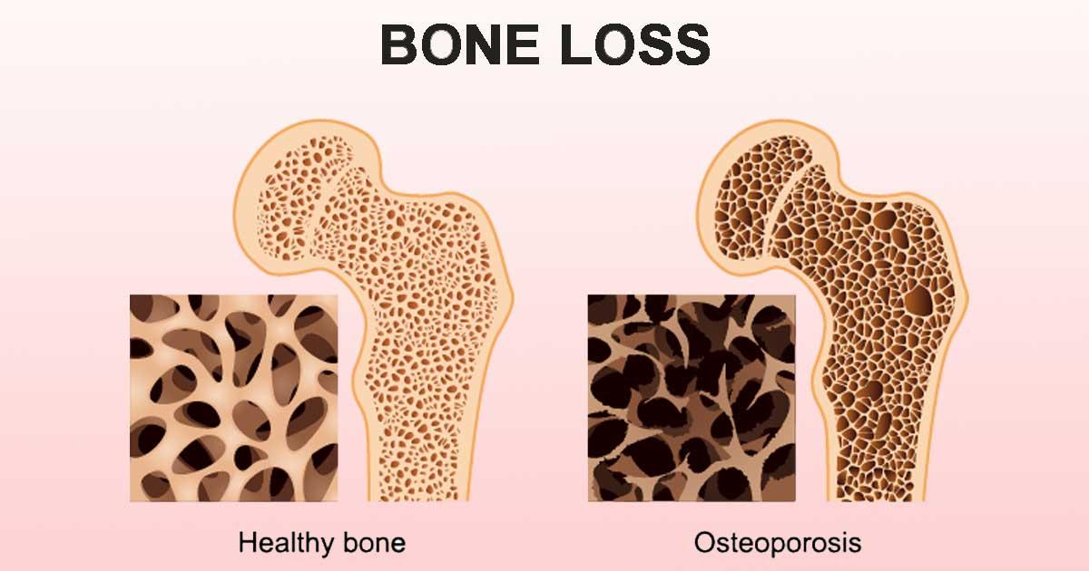 Best 5 Ways to Prevent Bone Loss