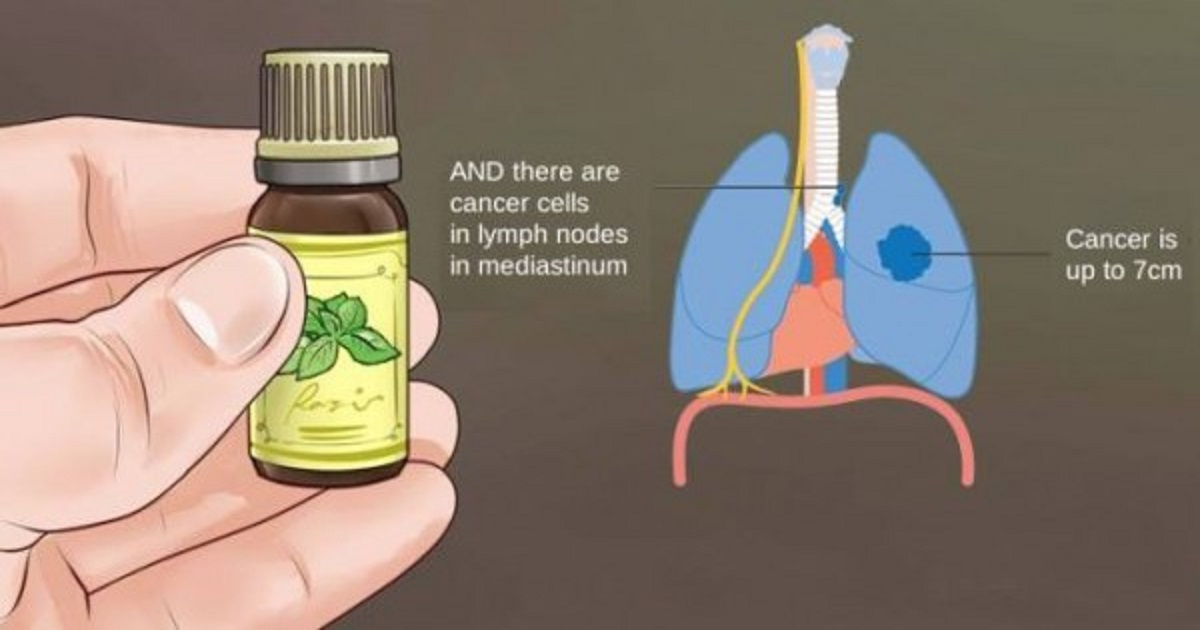 The Truth About Essential Oils: What No Oncologist Will Tell You!!!