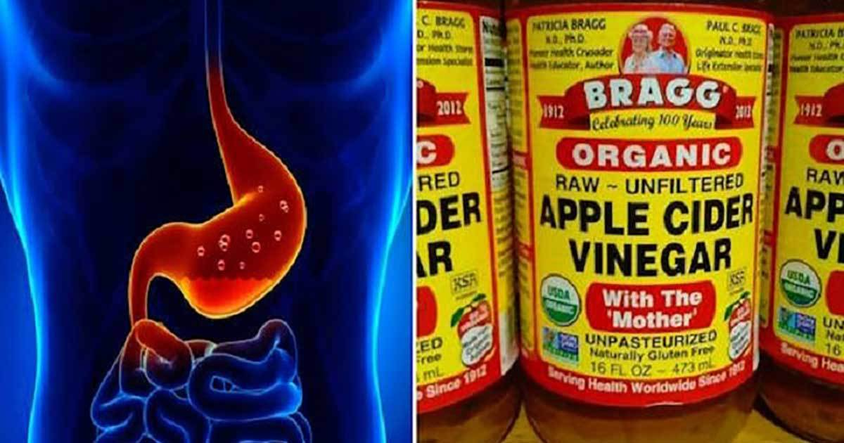 1 TBSP of Apple Cider Vinegar For 60 Days Can Treat These Health Problems