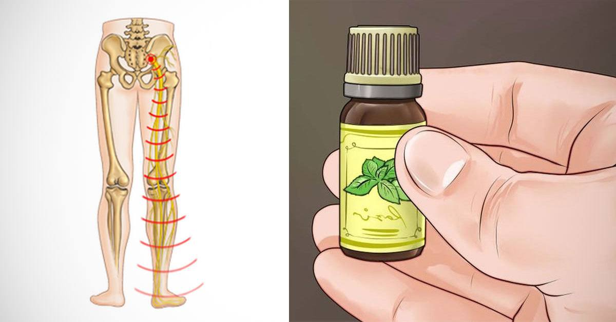 8 Ways to Relieve Sciatic Nerve Pain Naturally
