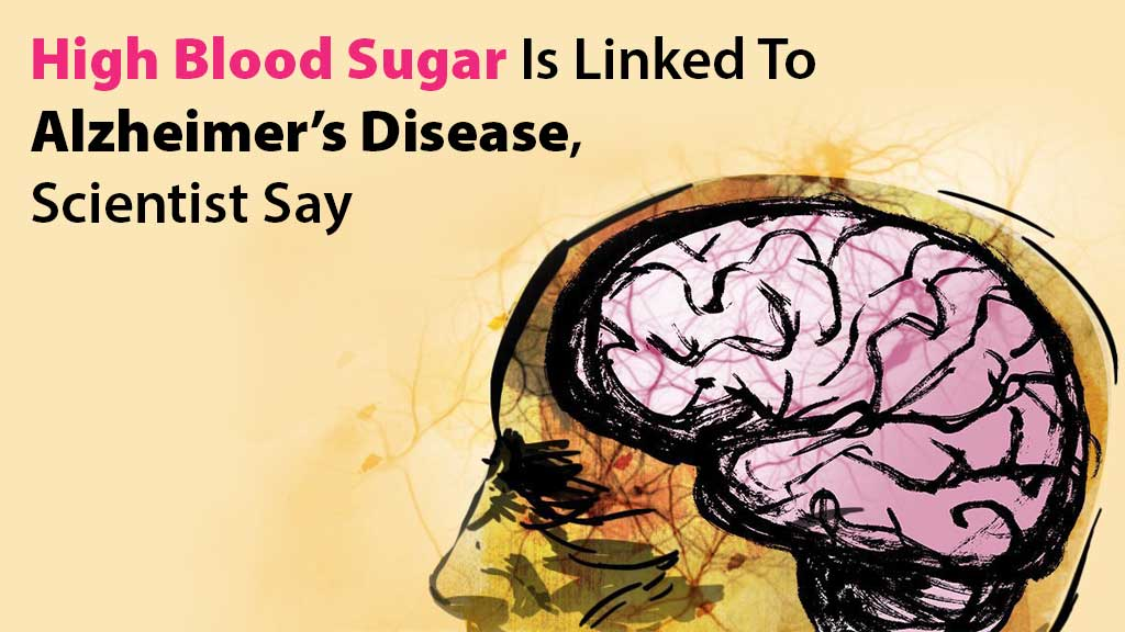 High Blood Sugar Is Linked To Alzheimer's Disease, Scientists Say