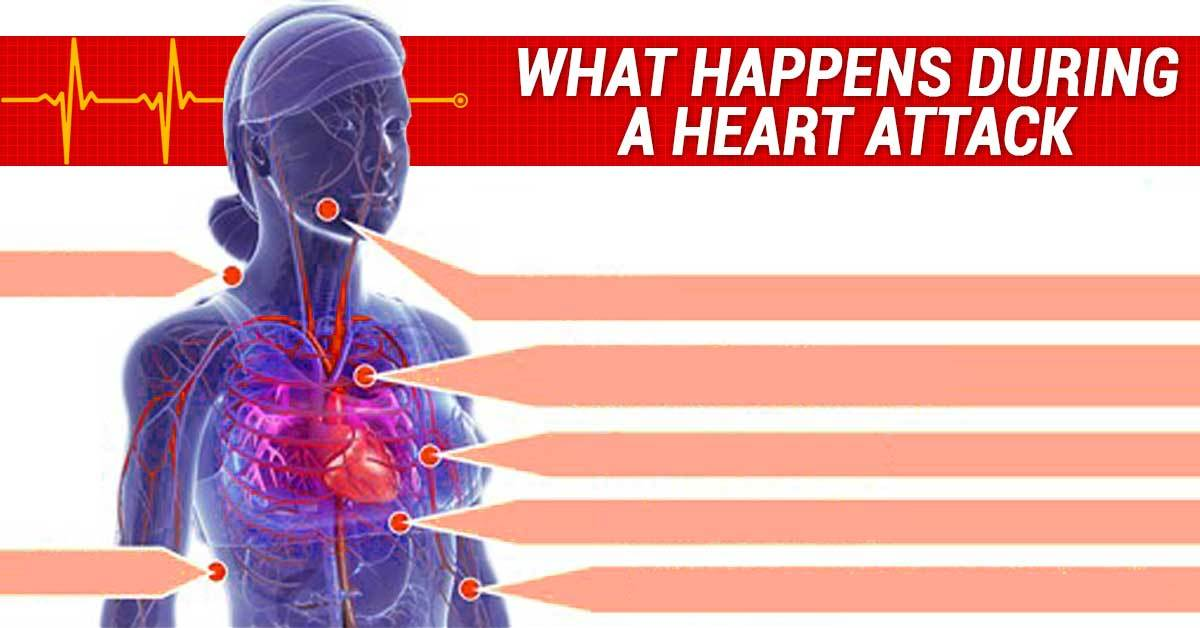 How to Know If You Are Having a Heart Attack