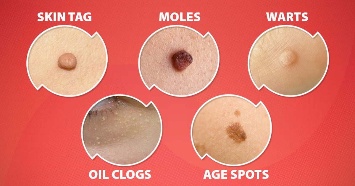 Natural Remedies for Removing Moles, Skin Tags, Spots, Warts, and Blackheads