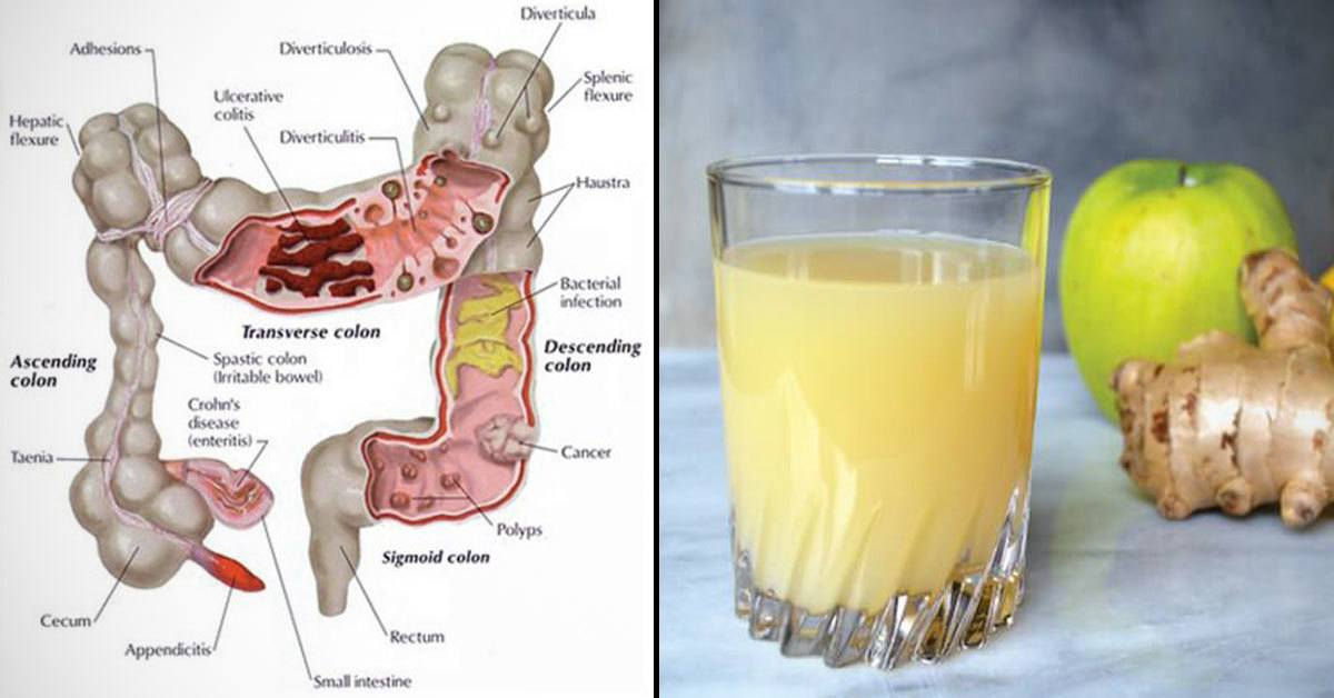 The Ginger, Apple, and Lemon Mixture Flushes Pounds of Toxins from the Colon